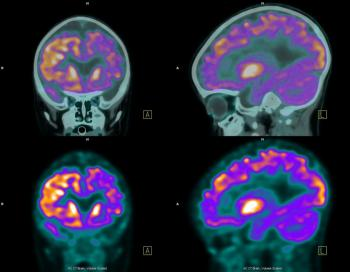 positron emission tomography pet scan In may of 2016, the uc davis veterinary hospital acquired a positron emission tomography (pet) scanner, becoming the first veterinary facility in the world to utilize the imaging technology for equine patients in association with the uc davis school of veterinary medicine's center for equine.