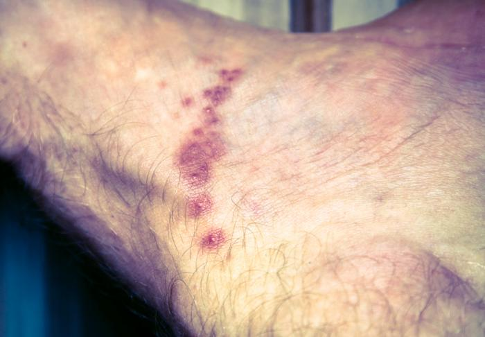 scabies rash photo
