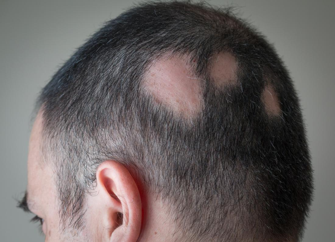 Dht Dihydrotestosterone What Is Dht S Role In Baldness