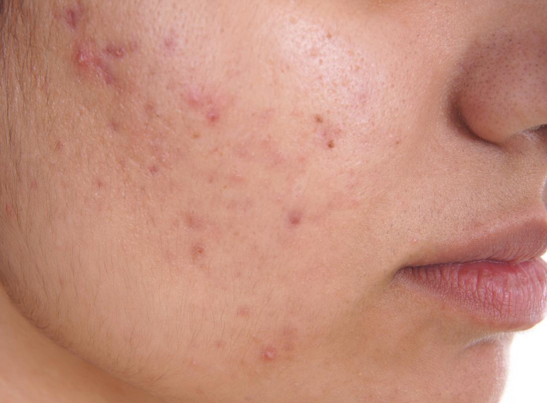 Blue light facial treatment not absolutely