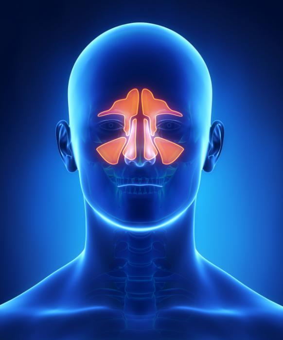 Image result for what is sinusitis