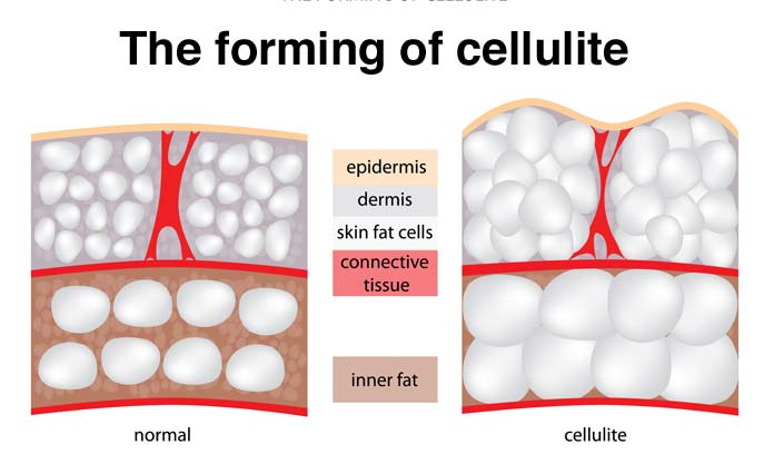 Cellulite Causes Treatment Prevention