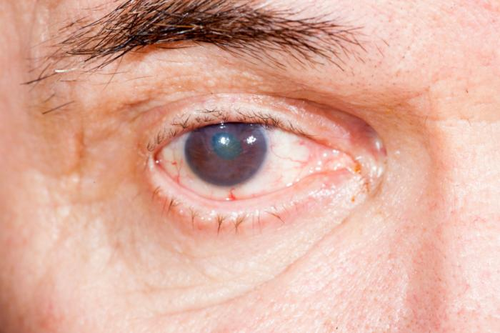 Natural Way To Get Rid Of Cataracts