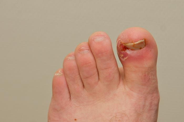 Side Of Big Toe Numb From New Shoes