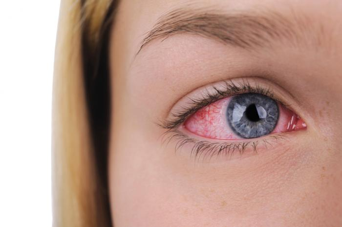 medical cum in the eye