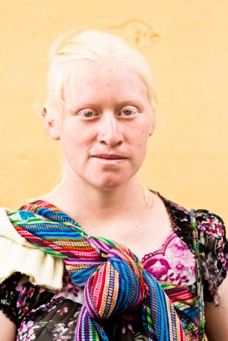 Albinism Symptoms Causes And Diagnosis Medical News Today