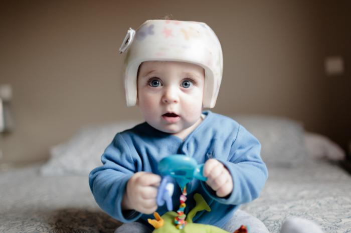 Helmet Therapy For Infant Positional Skull Deformation