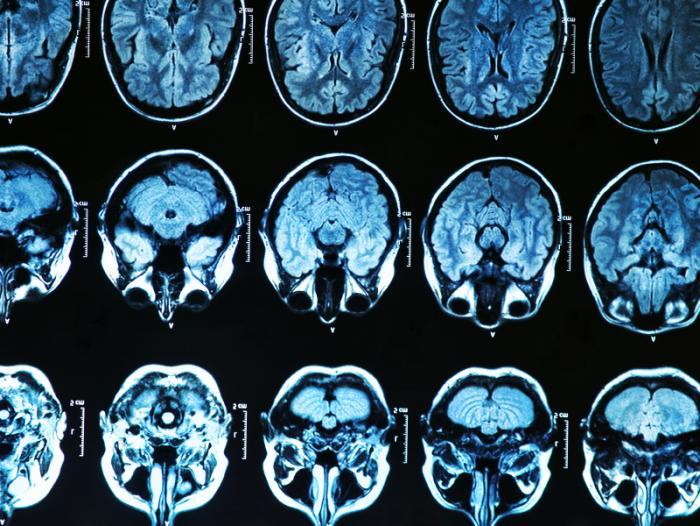 How does art help brain development