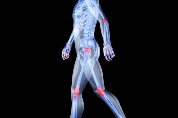 i sintomi dell'artrite