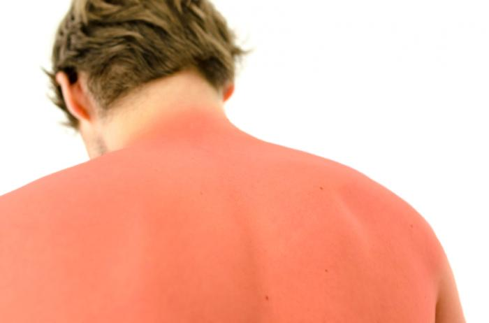 Image result for sunburn