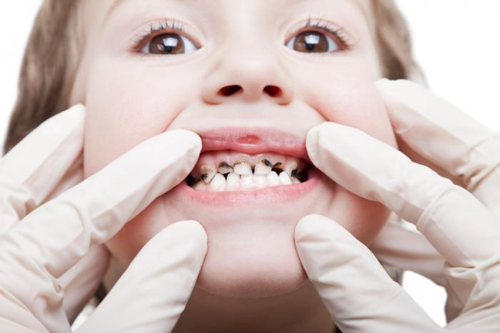 Stress in pregnancy may raise risk for dental caries in offspring ...
