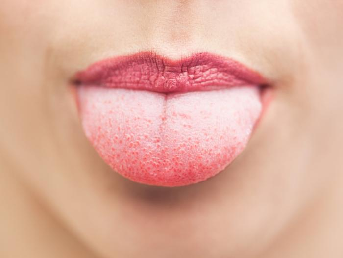Localization and structure of taste buds in the human tongue ...
