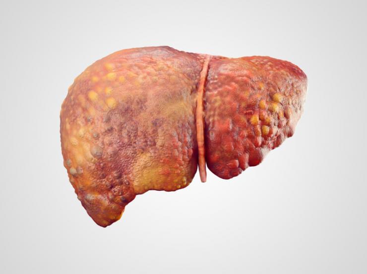 Understanding Hepatitis B