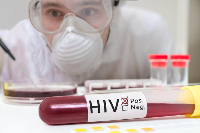 Hiv What Are The Symptoms Medical News Today