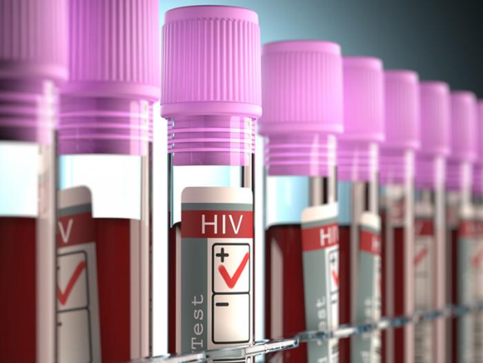 HIV: Newly discovered component could lead to more effective drugs ...