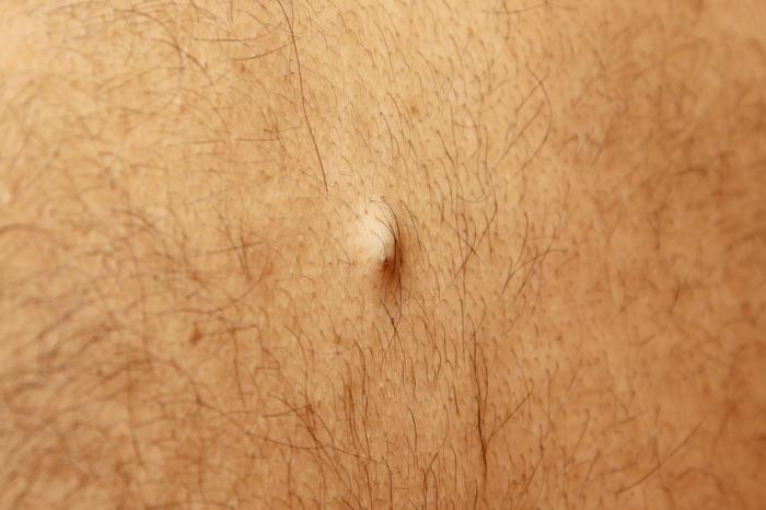 Sebaceous Cyst Treatment Causes And Symptoms Medical