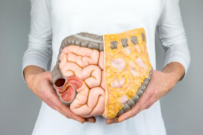Food additive alters gut bacteria to cause colorectal cancer