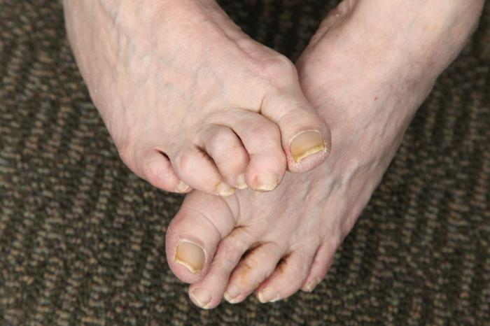 What is the treatment for hammertoe?