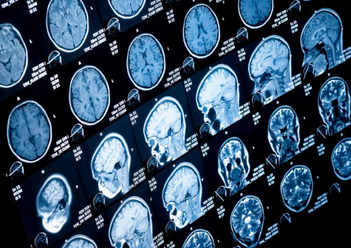 Adhd Real Brain Disorder Or Further >> Adhd Large Imaging Study Confirms Differences In Several Brain Regions