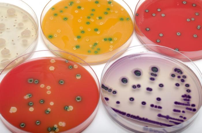Early miscarriage threat from Listeria may be serious