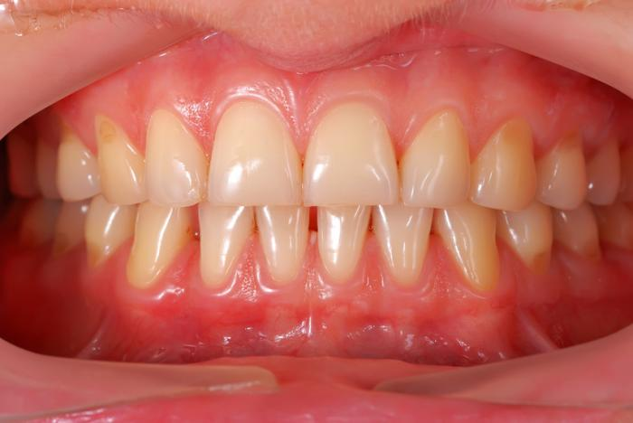 Medical News Today: Periodontitis may be an early sign of type 2 diabetes