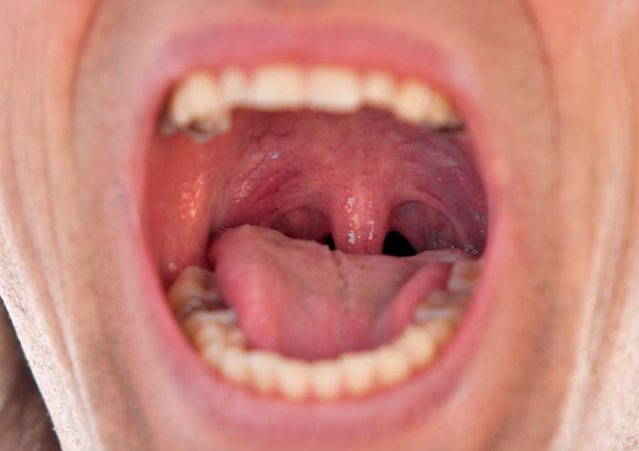 Swollen uvula: Causes, symptoms, and remedies - Medical ...