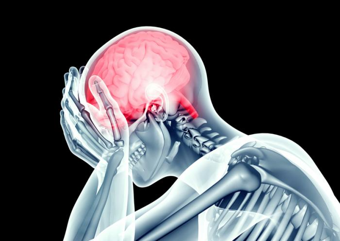 Medical News Today: People with mental health disorders at risk of stroke, study finds