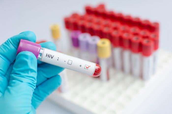 Medical News Today: HIV vs. AIDS: Differences and connections