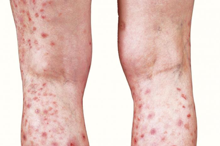 HIV lesions: Pictures and treatments
