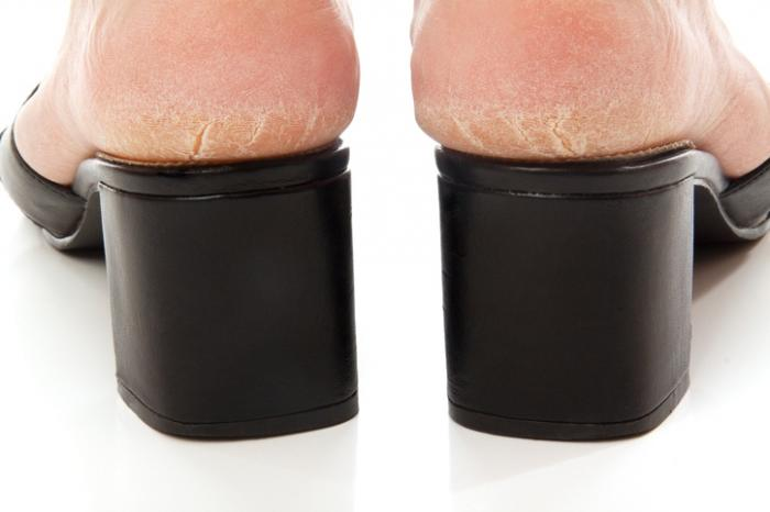 Six fixes for cracked heels