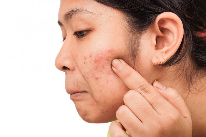 common skin rashes  pictures  causes  and treatments