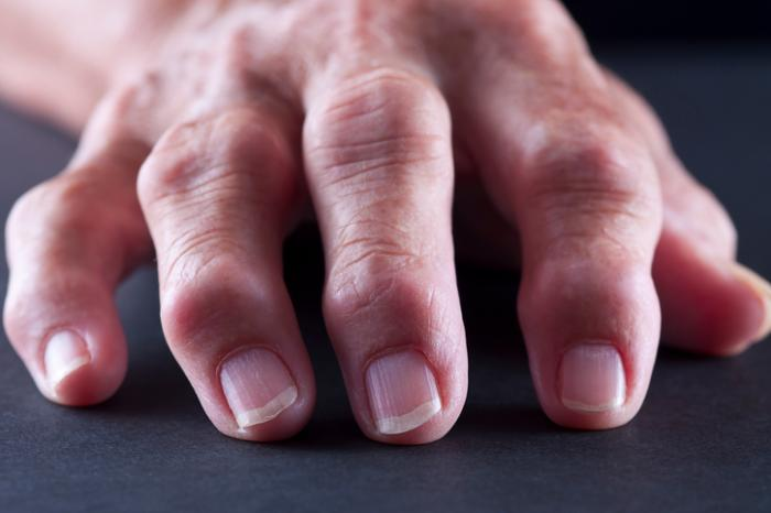 Medical News Today: Arthritis mutilans: Symptoms, causes, and treatment
