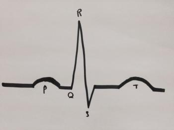 Medical News Today: EKG results for A-fib: What do they look like?