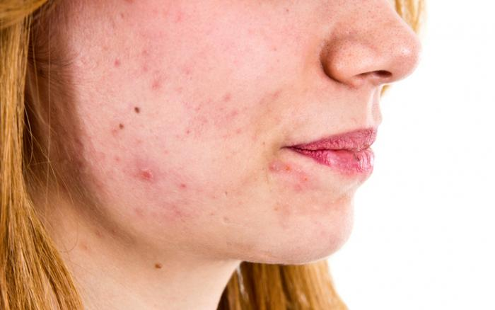 Acne may be caused by an imbalance of skin bacteria