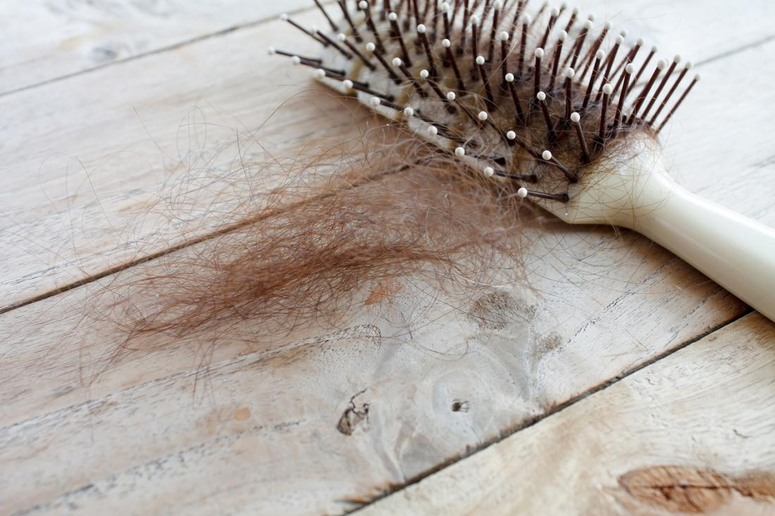 Medical News Today: Defective immune cells may play role in hair loss