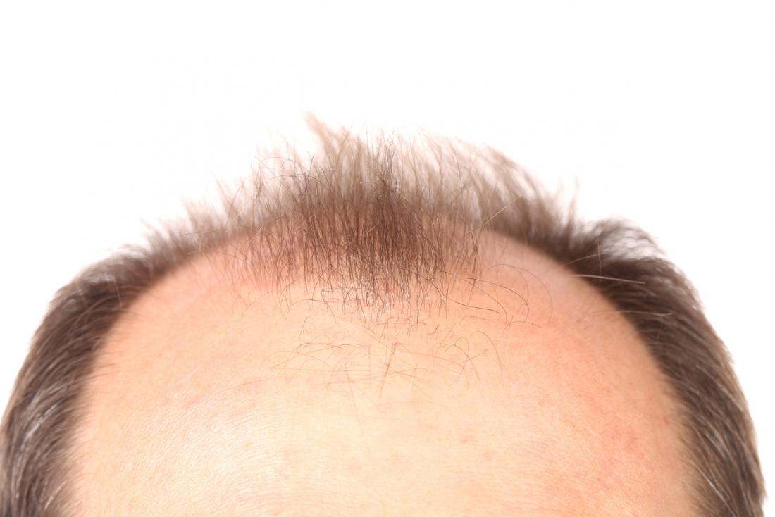 Baldness: How close are we to a cure?