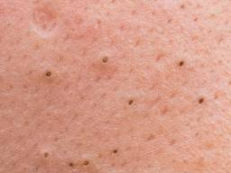 Blackheads: Facts, causes, and treatment
