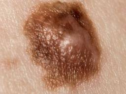Subungual melanoma: Symptoms, risk factors, and treatment