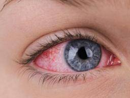 Keep Your Eyes Open Slow Down Wear >> Dry Eye Causes Treatment And Symptoms