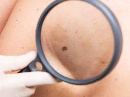 skin cancer essay