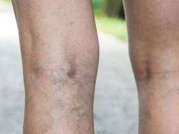 inflamed varicose veins
