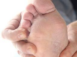 Dry sore thumbs athletes foot symptoms