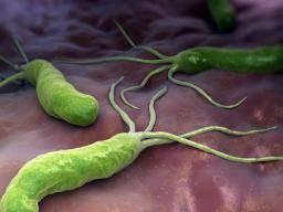 Atrophic gastritis: Symptoms, causes, and diagnosis