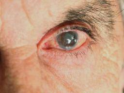 Pressure Behind The Eyes 6 Causes And Treatment