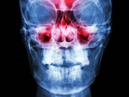Sinus infection: Symptoms, types, and complications