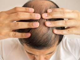 Receding Hair Line Loss Cure