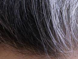 White Pubic Hair Four Possible Causes