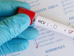 What are the chances of getting hep c sexually