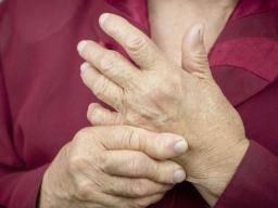 Rheumatoid arthritis: Birth control pill tied to reduced risk