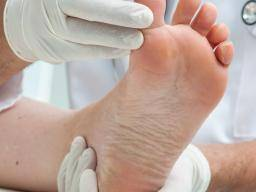 Bunions Causes Symptoms And Treatment
